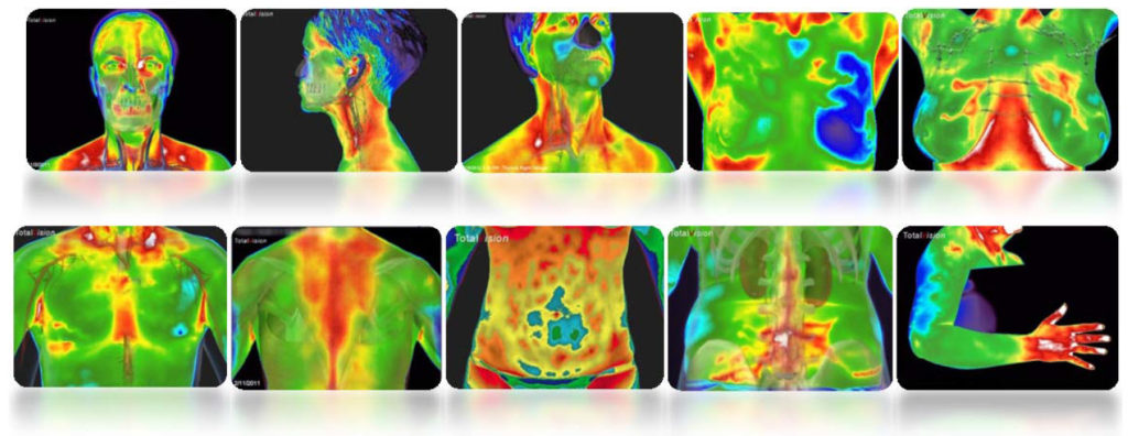 10 Human Body Thermography Scan Examples