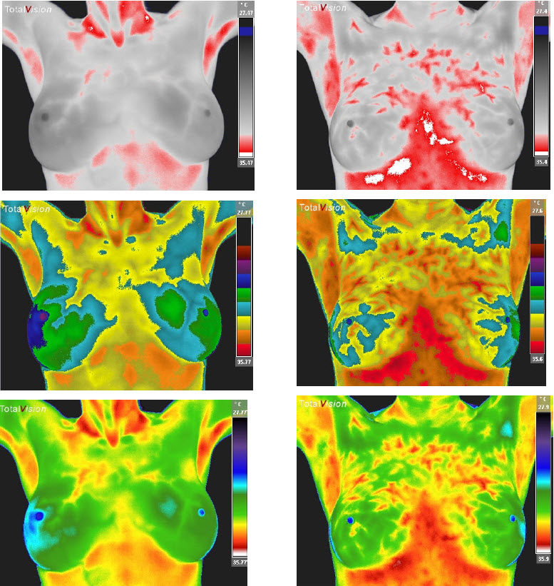 Breast Hormonal Mottling Thermograph Scan Examples