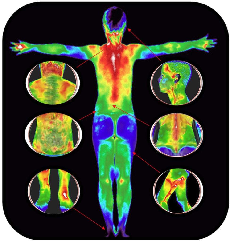 Full Body Thermograph Scan With Zoom In Details
