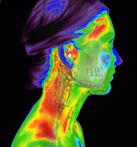 Face Profile Thermograph Scan Example