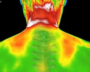 Neck Thermograph Example
