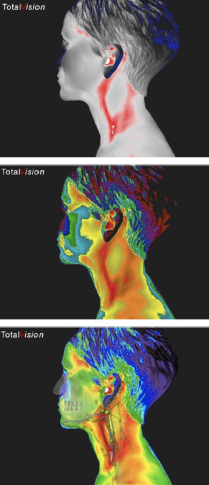 Thermograph of 3 Face Profiles