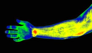 human hand and arm under thermography