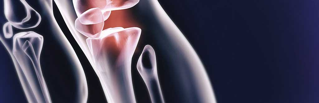 thermography view of a broken leg bone